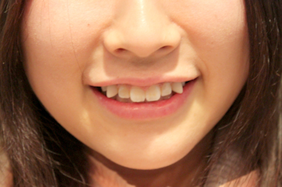 Tsuke Taeba Teeth