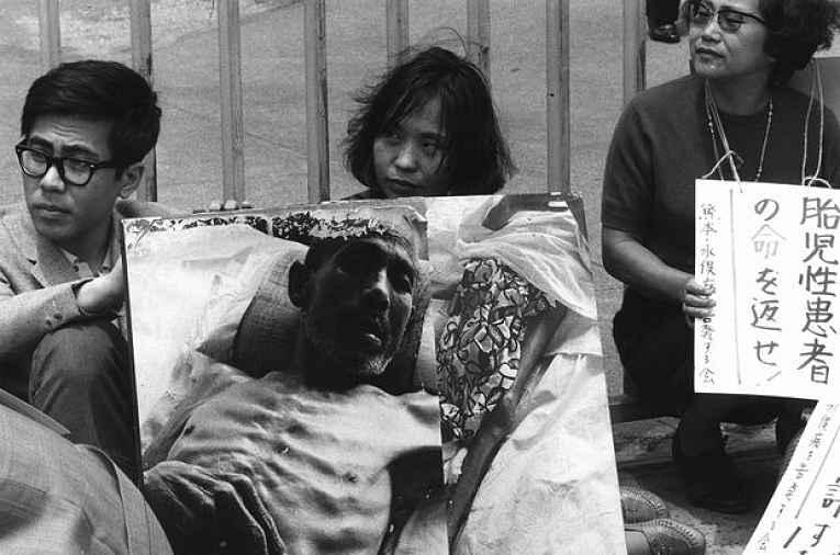 doença de Minamata