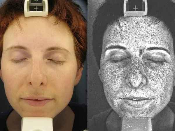 Ação dos raios UV na pele
